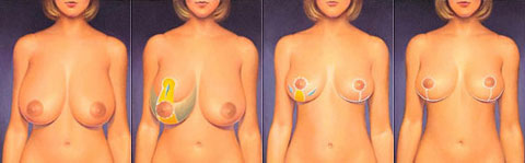 breast_reduction